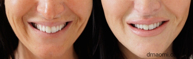 Dermal Filler In Nasolabial Folds Top 10 Faqs Best