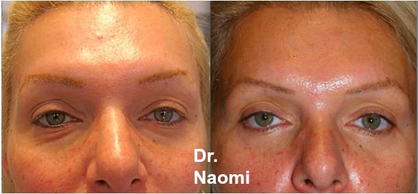 Treatments for eye ageing