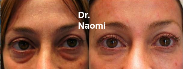 Before and after 3 treatments tear trough fillers