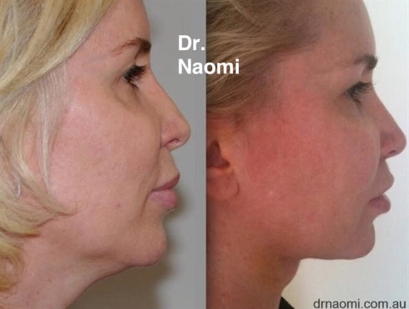 New Double Chin Treatment Arrives in Australia - Best Clinic