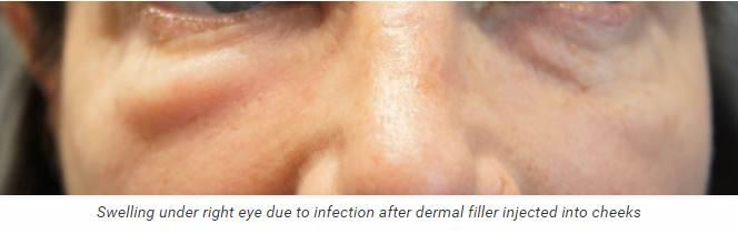 Dermal Filler Infections - Best Clinic Sydney for Dermal Fillers