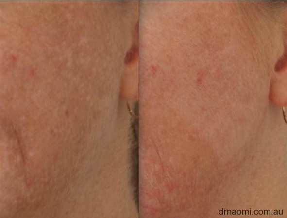 Before and after IPL for melasma