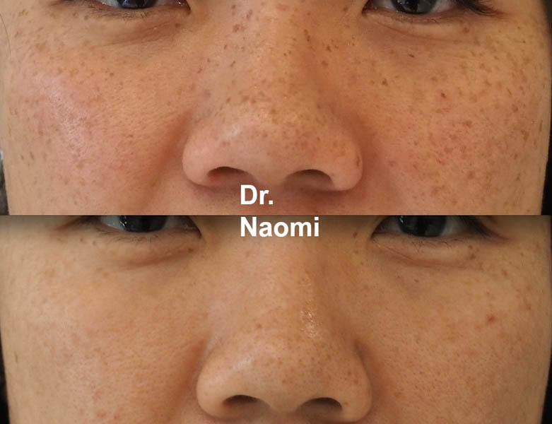 Before and after freckle removal asian skin laser