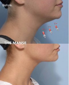 Before and after neck fat injections