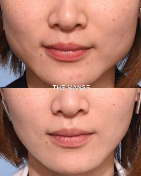 Masseter slimming