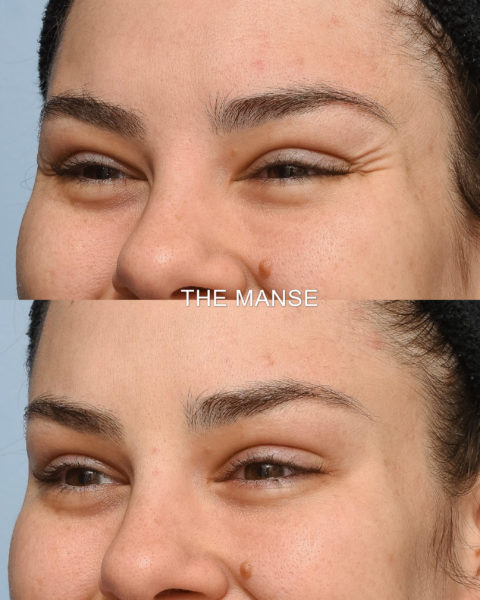 Crows feet wrinkle injections before and after