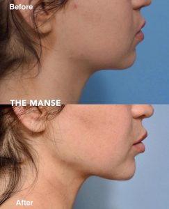 Neck fat dissolving, chin fillers and lip fillers