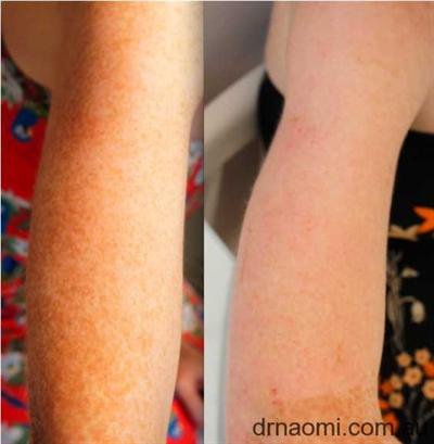 Freckle Removal Best Clinic Sydney For Dermal Fillers