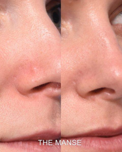 Colourless mole removal face