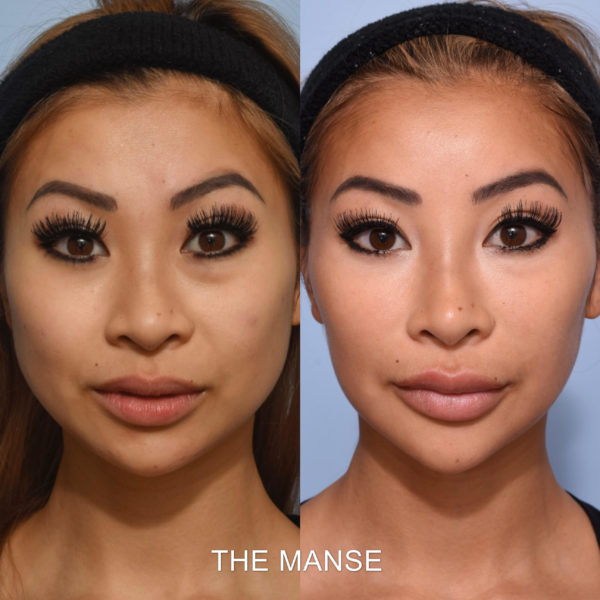 Injectables before and after asian face