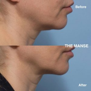 Neck fat dissolving 50 year old