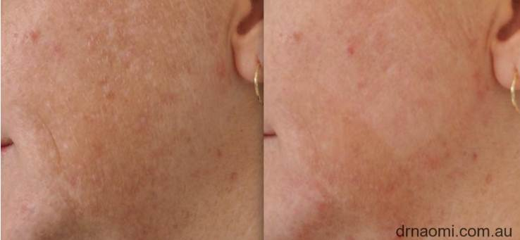 Removing pigmentation with IPL