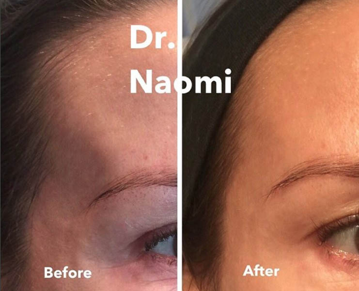 Before and after Temple dermal filler