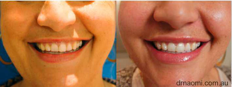"Before and after lip filler to treat ""lips disappearing on smiling""."