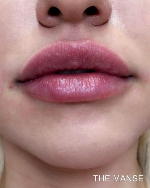 After lip fillers by The Manse
