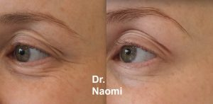 Eye wrinkle prevention injections