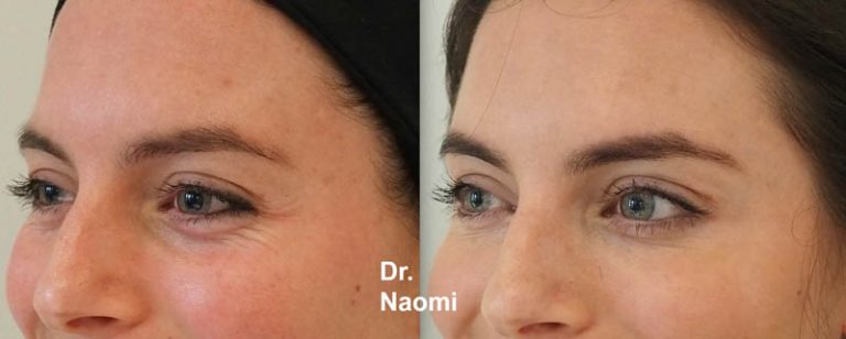 eye ageing treatments