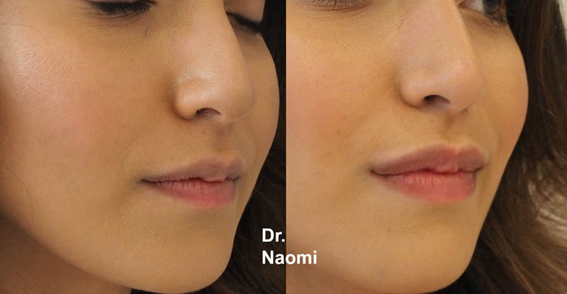 Lips before and after 1ml