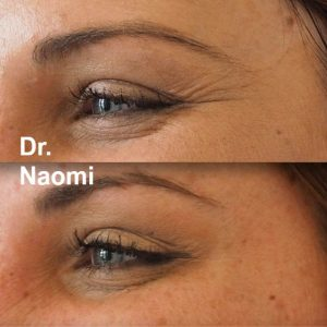 before and after eye wrinkle injections