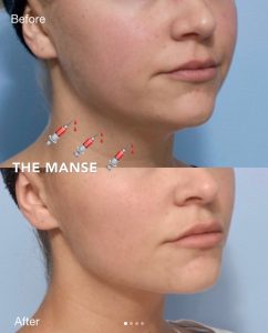 Double Chin Injections - Best Clinic Sydney for Dermal Fillers