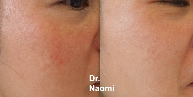 Before and after treatment for melasma