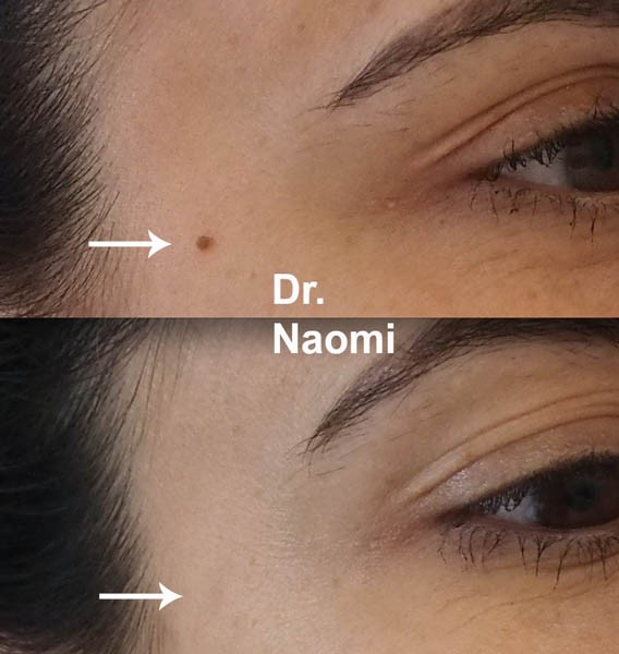 Mole And Brown Spot Removal Best Clinic Sydney For