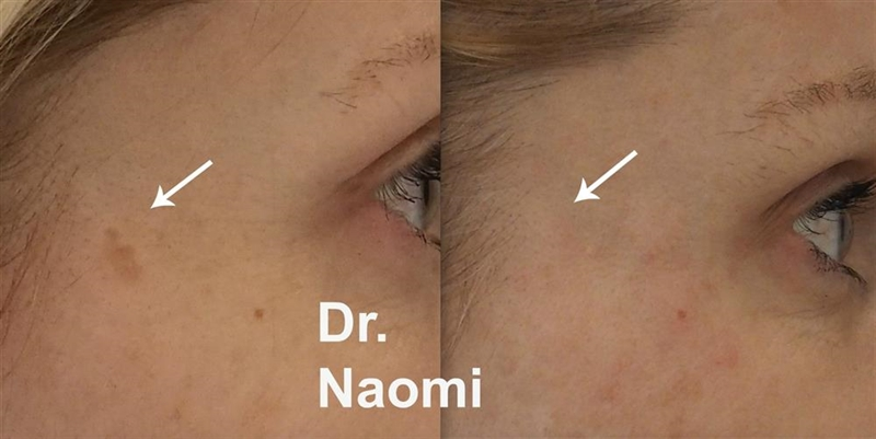 brown spot laser removal sydney