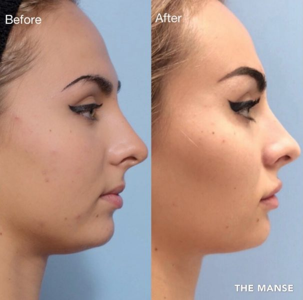 Cheek fillers lip fillers chin fillers and face slimming