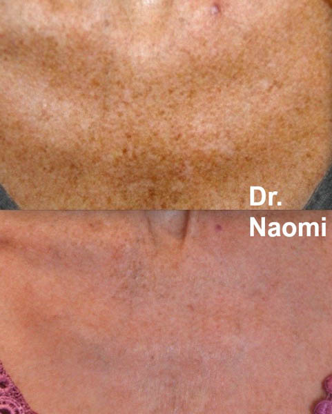 Freckle removal decolletage