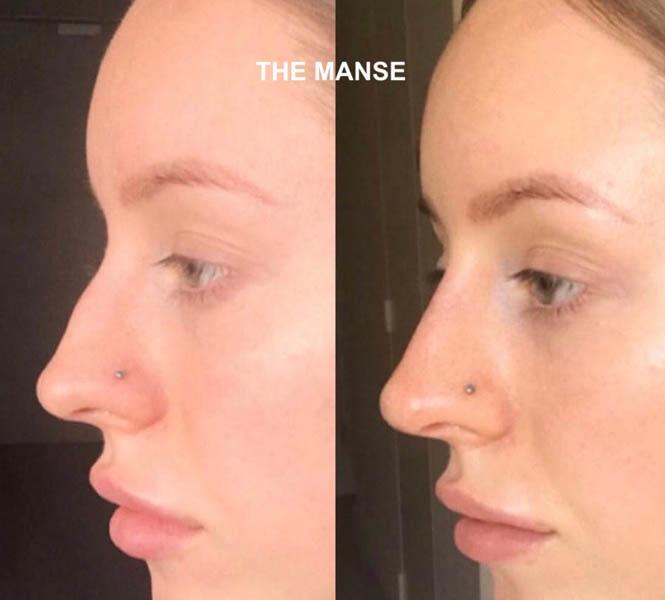 Nose Filler - Best Clinic Sydney for Dermal Fillers