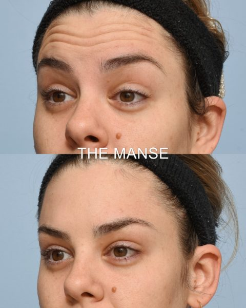 Forehead wrinkle injections before and after
