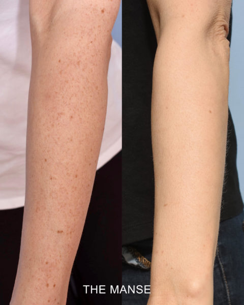 freckle removal sydney