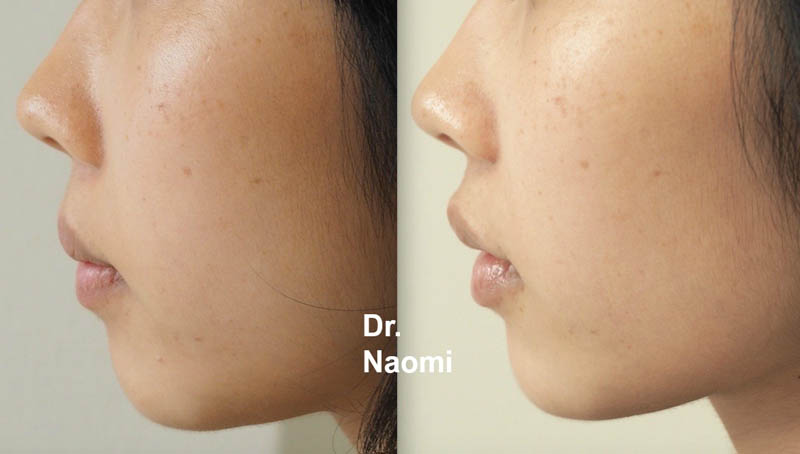 Chin fillers