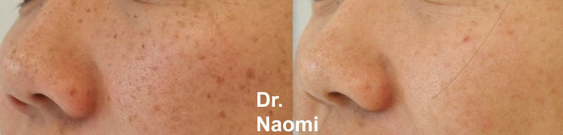 Freckle removal asian skin tone