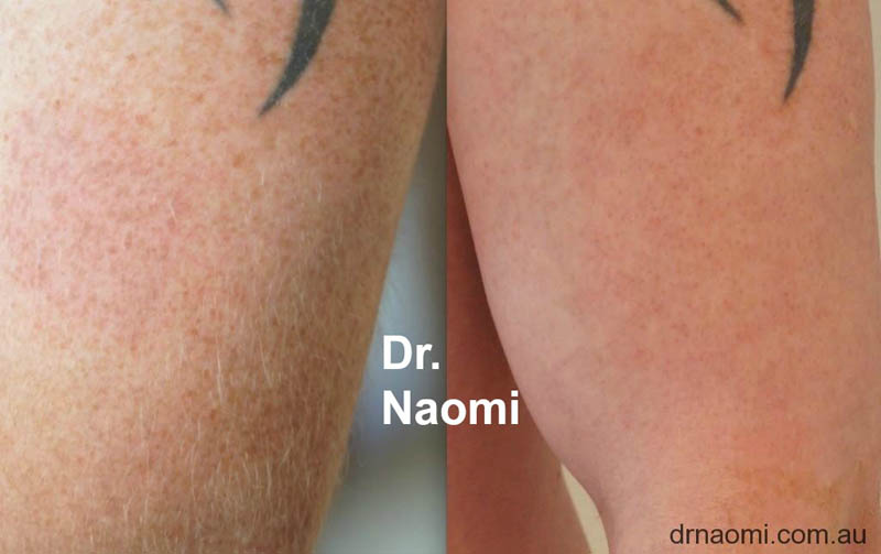 Freckle removal around a tattoo