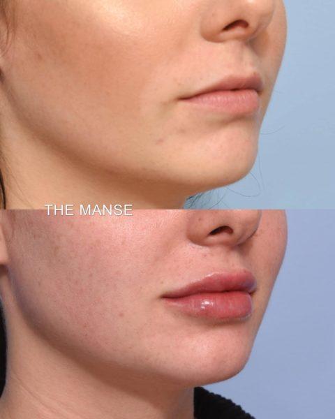lip filler for small lips