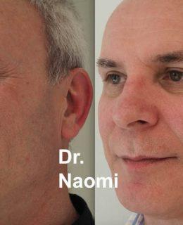 Restylane Skin Care Archives - Best Clinic Sydney for Dermal