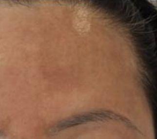 Pigmentation Best Clinic Sydney For Dermal Fillers