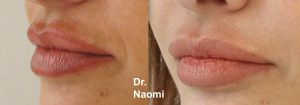Pigmentation on upper lip treatment