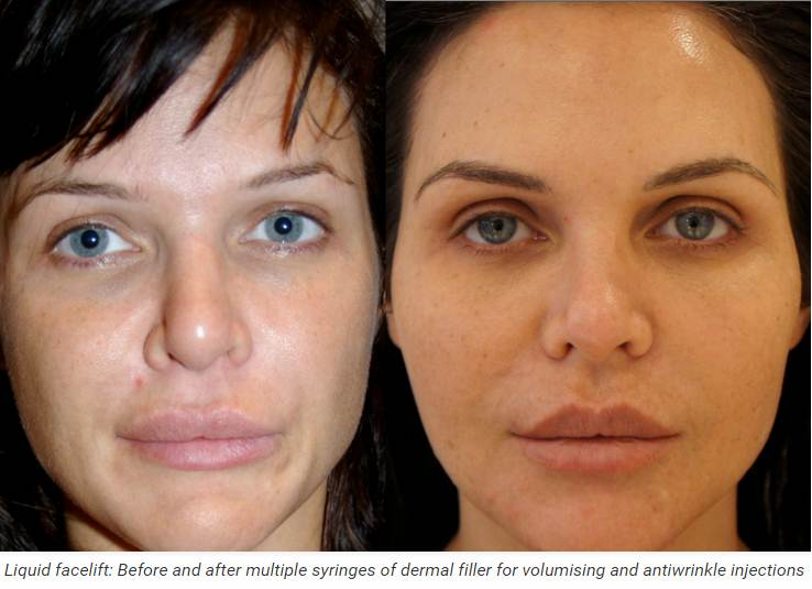 Liquid Facelift Sydney: Dermal Fillers for Facial Volume, Sydney clinic