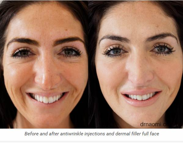 Sometimes Packages Of Dermal Filler For Liquid Facelift Are Available From 4mls 2000