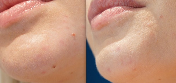 before and after mole removal sydney