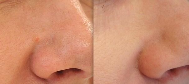 Before and after 1 treatment of laser for mole removal nose