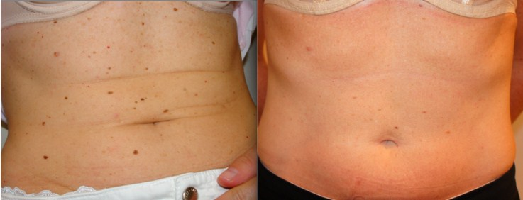Before and after laser treatment of freckles/moles on abdomen