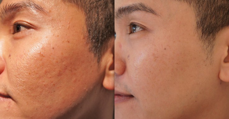 Before and after 1 treatment of multiple lumps on face with laser