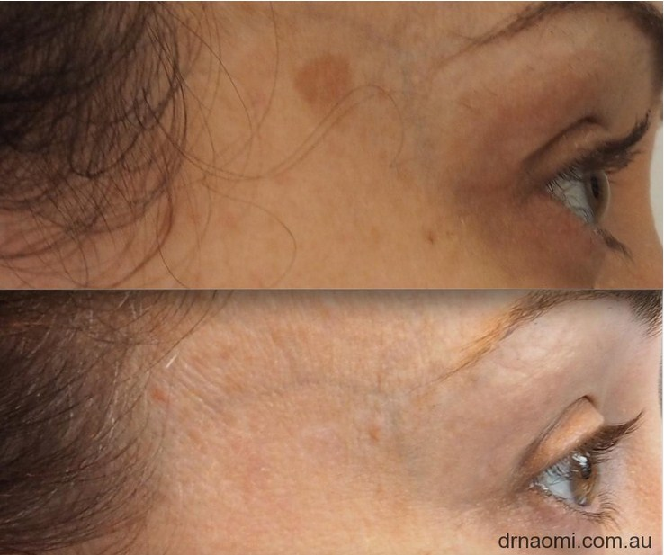 Before and after brown spot removal from face with laser 1 treatment