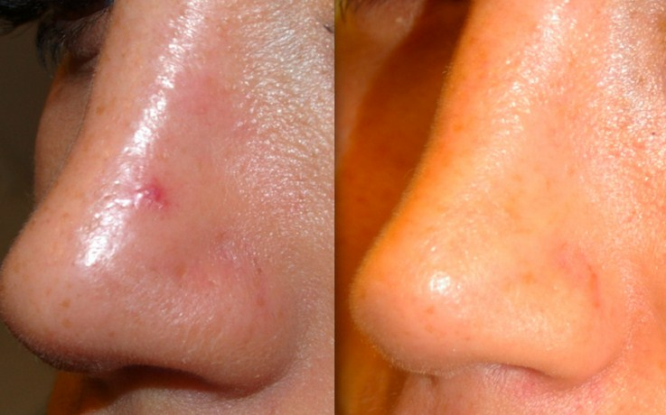 Before and after red spot removal laser