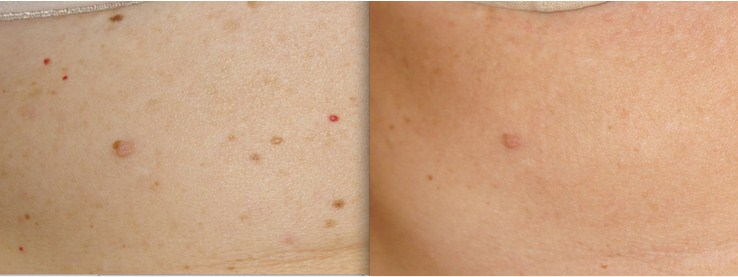 Campbell de morgan spots before and after treatment