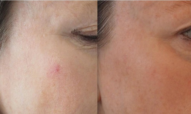 Before and after laser to remove spider angioma on the cheekc