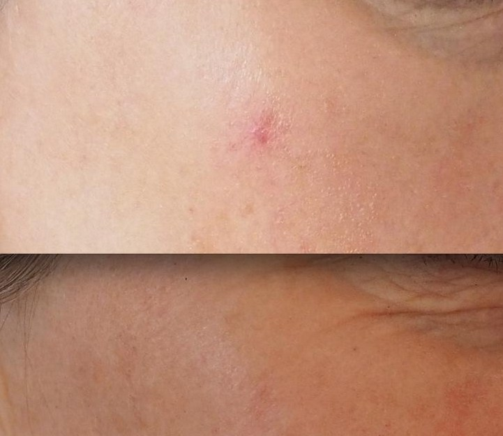 before and after red spot removal with laser